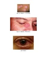 xfs 150x250 s100 page0004 6 Ingrijirea pacientului cu sarcoidoza