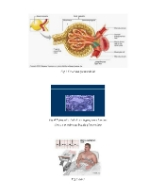 xfs 150x250 s100 page0002 8 Ingrijirea pacientului cu nefropatie diabetica