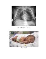 xfs 150x250 s100 page0002 8 Ingrijirea nou nascutului cu insuficienta respiratorie acuta