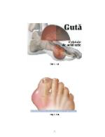 xfs 150x250 s100 GUTA 31 0 Ingrijirea pacientului cu guta