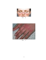 xfs 150x250 s100 page0037 0 Ingrijirea pacientului cu colagenoza
