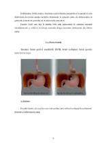 xfs 150x250 s100 page0007 0 Ingrijirea varstnicului cu hernie hiatala