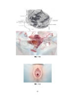 xfs 150x250 s100 PROLAPSUL 34 0 Ingrijirea pacientei cu prolaps genital feminin