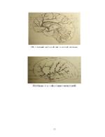 xfs 150x250 s100 page0077 0 Ingrijirea pacientului cu accident vascular cerebral (AVC)