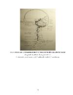 xfs 150x250 s100 page0078 0 Ingrijirea pacientului cu accident vascular cerebral (AVC)