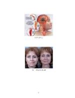 xfs 150x250 s100 page0081 0 Ingrijirea pacientului cu accident vascular cerebral (AVC)