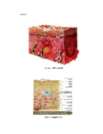 xfs 150x250 s100 page0001 14 Ingrijirea pacientului cu escara de decubit