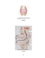 xfs 150x250 s100 REUMATISMUL ARTICULAR ACUT 42 0 Ingrijirea copilului cu reumatism articular acut