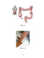 xfs 150x250 s100 SINDROMUL DE DESHIDRATARE 36 0 Ingrijirea pacientului cu sindrom cushing