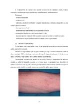 xfs 150x250 s100 page0016 0 Ingrijirea pacientului cu alergii