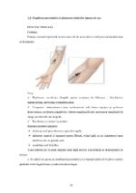 xfs 150x250 s100 page0029 0 Ingrijirea pacientului cu alergii
