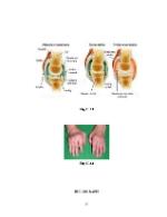 xfs 150x250 s100 POLIARTRITA REUMATOIDA 54 0 Ingrijirea pacientului cu poliartrita reumatoida