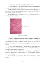 xfs 150x250 s100 page0006 0 Ingrijirea pacientului cu hemoroizi