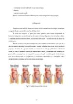 xfs 150x250 s100 page0011 0 Ingrijirea pacientului cu hemoroizi