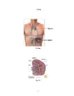 xfs 150x250 s100 page0040 0 Ingrijirea pacientului cu leucemie mieloblastica