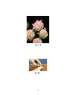 xfs 150x250 s100 page0041 0 Ingrijirea pacientului cu leucemie mieloblastica