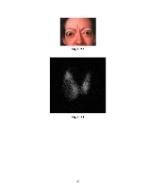 xfs 150x250 s100 HIPERTIROIDIA 49 0 Ingrijirea pacientului cu hipertiroidie