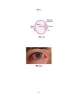 xfs 150x250 s100 CONJUNCTIVITA 36 0 Ingrijirea pacientului cu conjunctivita