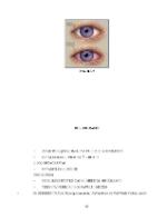 xfs 150x250 s100 CONJUNCTIVITA 37 0 Ingrijirea pacientului cu conjunctivita