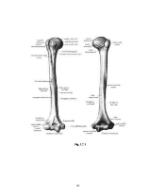 xfs 150x250 s100 FRACTURA DE UMAR 34 0 Ingrijirea pacientului cu fractura de umar