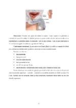 xfs 150x250 s100 page0005 0 Ingrijirea pacientului cu adenom de prostata