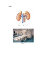xfs 150x250 s100 page0001 14 Ingrijirea pacientului cu boala Addison