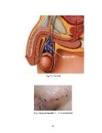 xfs 150x250 s100 page0064 0 Ingrijirea pacientului cu varicocel