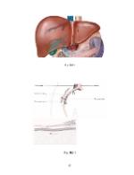 xfs 150x250 s100 ORGANO FOSFORICE 52 0 Ingrijirea pacientului cu intoxicatie cu organofosforice