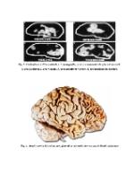 xfs 150x250 s100 page0002 10 Ingrijirea pacientului cu dementa senila