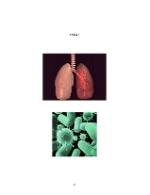 xfs 150x250 s100 page0055 0 Ingrijirea pacientului cu pneumonie pneumococica