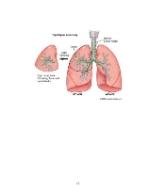 xfs 150x250 s100 cancer pulmonar 43 0 Ingrijirea pacientului cu cancer pulmonar