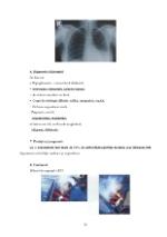 xfs 150x250 s100 page0014 0 Ingrijirea pacientului cu intoxicatie cu monoxid de carbon