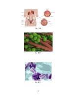 xfs 150x250 s100 page0043 0 Ingrijirea pacientului cu pielonefrita acuta