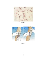 xfs 150x250 s100 page0044 0 Ingrijirea pacientului cu pielonefrita acuta