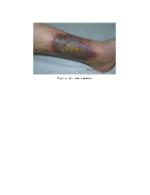 xfs 150x250 s100 page0003 6 Ingrijirea pacientului cu insuficienta venoasa cronica