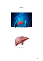 xfs 150x250 s100 page0048 0 Ingrijirea pacientului cu chist hidatic hepatic