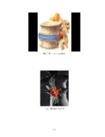 xfs 150x250 s100 page0057 0 Ingrijirea pacientului cu discopatie lombara