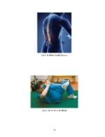 xfs 150x250 s100 page0058 0 Ingrijirea pacientului cu discopatie lombara