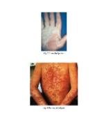 xfs 150x250 s100 page0003 6 Ingrijirea pacientului cu psoriazis