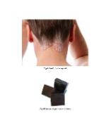 xfs 150x250 s100 page0004 6 Ingrijirea pacientului cu psoriazis