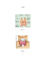 xfs 150x250 s100 page0049 0 Ingrijirea pacientului cu cancer de tiroida