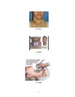xfs 150x250 s100 page0050 0 Ingrijirea pacientului cu cancer de tiroida