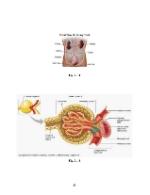 xfs 150x250 s100 GNDAPS 49 0 Ingrijirea pacientului cu glomerulonefrita acuta difuza poststreptococica