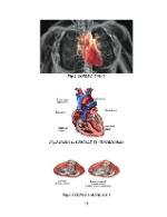 xfs 150x250 s100 page0053 0 Ingrijirea pacientului cu stenoza mitrala