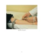 xfs 150x250 s100 page0059 0 Ingrijirea pacientului cu septicemie