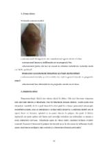 xfs 150x250 s100 page0017 0 Ingrijirea pacientului cu osteosarcom