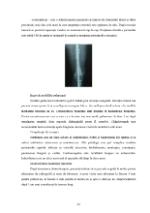 xfs 150x250 s100 page0022 0 Ingrijirea pacientului cu osteosarcom