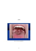 xfs 150x250 s100 page0067 0 Ingrijirea pacientului cu amigdalita acuta