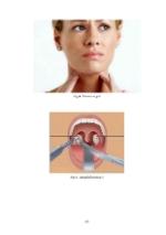 xfs 150x250 s100 page0069 0 Ingrijirea pacientului cu amigdalita acuta