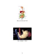 xfs 150x250 s100 page0098 0 Ingrijirea pacientului cu boala diareica acuta (BDA)